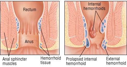 What is a hemroid - What are hemroids