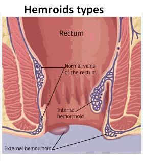 Hemroid symptoms - Internal hemroids and external hemroids